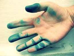 рука испачкана в зеленке